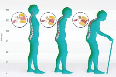 osteoporeza przyczyny i objawy